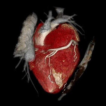 Badanie TK Serca i naczyń wieńcowych1