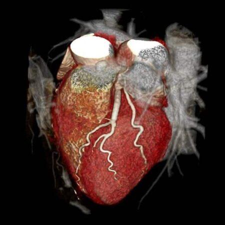 Badanie TK Serca i naczyń wieńcowych2